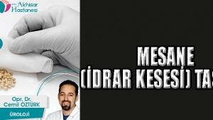 MESANE (İDRAR KESESİ) TAŞLARI